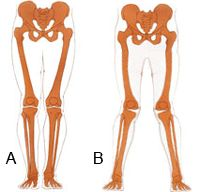 valgus alignment of the knees.  If your femurs are internally rotated and you walk pigeon-toed because of it.  Exercises to train out of it at the link.