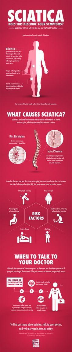 "sciatica-infographic-nerve-pain.jpg (630×3057)  <a class=""pintag searchlink"" data-query=""%23sciatic"" data-type=""hashtag"" href=""/search/?q=%23sciatic&rs=hashtag"" rel=""nofollow"" title=""#sciatic search Pinterest"">#sciatic</a> treatment  #treatment for sciatic nerve pain #how to relieve sciatic nerve pain #sciatic nerve pain relief #sciatic nerve pain treatment #how to stop sciatic nerve pain"