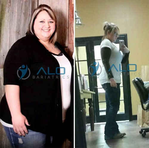 Looking great and Feeling awesome! Gastric Sleeve Surgery patient.