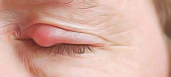 Chalazions et kystes de la paupières, les remèdes naturels pour soigner rapidement.