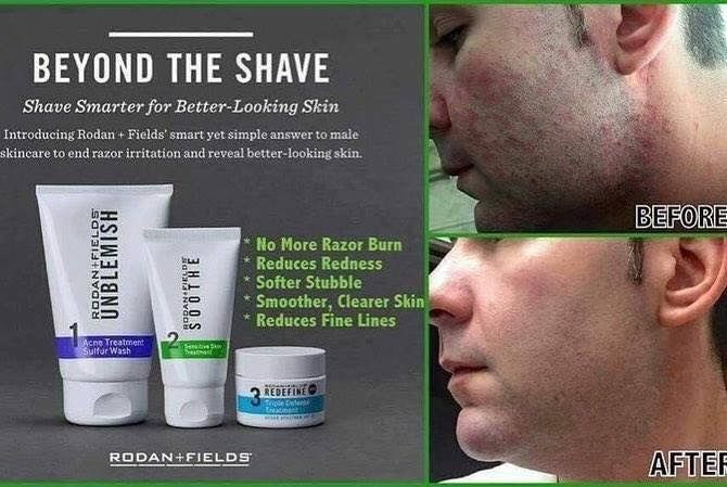 Rodan + Fields Beyond the Shave Regimen = impressive results!