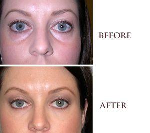 San Francisco Juvederm   Wrinkle Relief and Facial Filler   Visage ... for dark circle