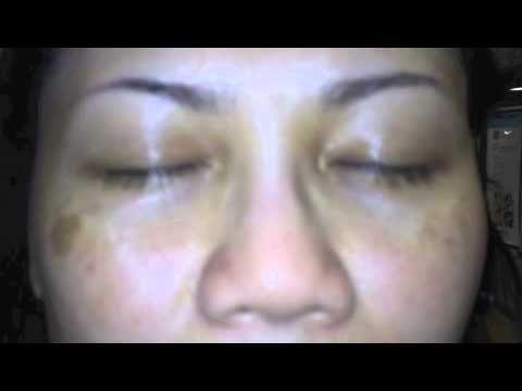 Advanced Pigmentation Treatments  www.spasourceinstitute.com www.spasourceusa.com 214-201-3000 972-473-7767