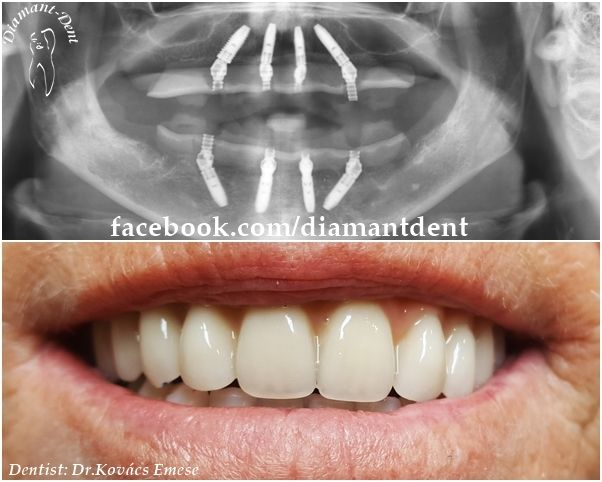 New Smile, new life :) Have a Bright smile! Dental All-on-4 Bridge with Nobel Biocare implants, Diamant Dent