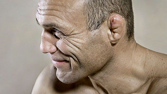 Cauliflower Ear 101: Cause, Treatment and Prevention - http://www.scifighting.com/cauliflower-ear-101-cause-treatment-prevention/