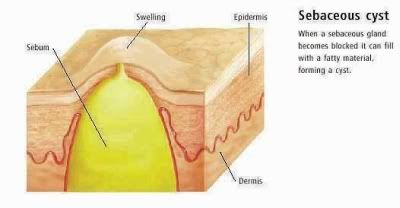 Sebaceous cyst – Causes, Symptoms, Diagnosis, Treatment and Ongoing care - Synonyms: Epidermoid cysts, epidermal cysts, epidermal inclusion cysts, keratin cyst Description A benign encapsulated subepidermal lesion that is filled with keratin Read more: http://health.tipsdiscover.com/sebaceous-cyst-causes-symptoms-diagnosis-treatment-and-ongoing-care/#ixzz2Yv98bNAR