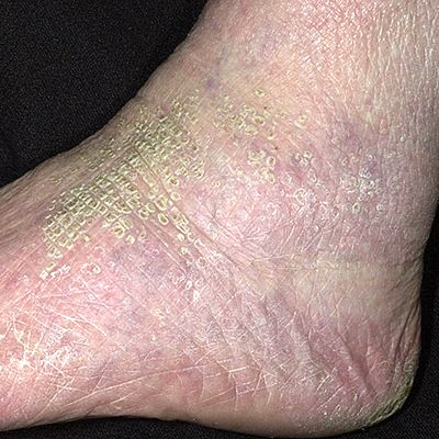 Calvert wants skin condition scaly facial skin hasn't masturbated