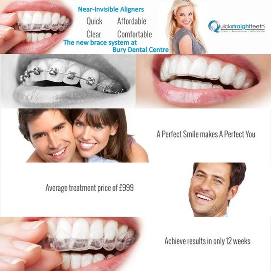 Bury Dental Centre is the only provider of Quick Straight Teeth in the north west.