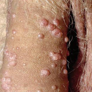 Before you can utilize a #genital #warts #treatment you need to know whether you truth be told have #genital #warts. #Genital #warts are a standout amongst the most well-known sexually transmitted maladies.