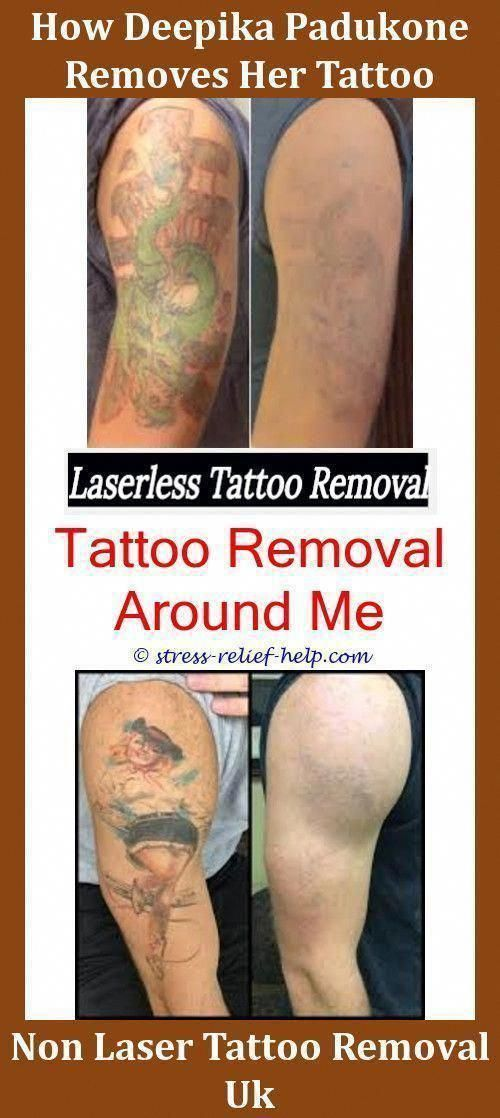 Best Tattoo Removal How Much Tattoo Removal Cost Saltwater