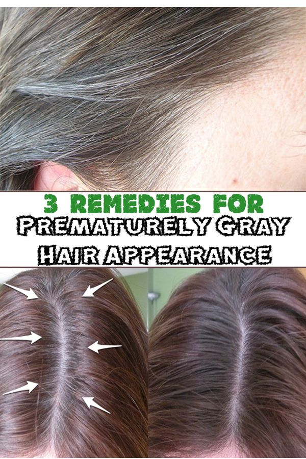 3 remedies for Prematurely Gray Hair Appearance