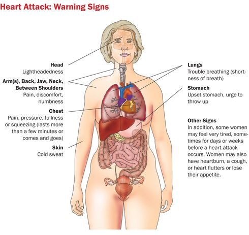 Heart Attack Signs in WomenHealthy Heart, Heart Attack, Problems Signs, Health Facts, Attack Warning, Attack Signs, Women Health, Warning Signs, Anxiety Attack