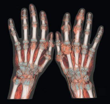 Υπερουριχαιμία, ουρική αρθρίτιδα και διατροφή • Nutripedia