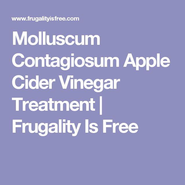 Molluscum Contagiosum Apple Cider Vinegar Treatment | Frugality Is Free