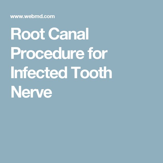 Root Canal Procedure for Infected Tooth Nerve
