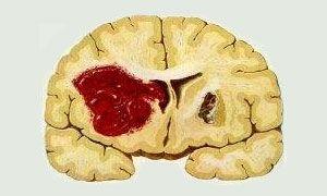 Hersenbloeding Beschrijving: Het openbarsten van bloedvaten in de hersenen.  Oorzaak: Hoge bloeddruk, suikerziekte, bepaalde hartritmestoornissen en hartaandoeningen, stoornissen in de cholesterolhuishouding, aderverkalking, roken, hyperhomecysteïnemie, eerdere CVA of TIA, te lage inname magnesium en aandoeningen van de perifere bloedvaten. Behandeling: Oplossen van het bloedstolsel, hierdoor schade beperkter. Revalideren.