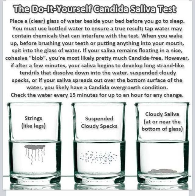 Have you taken this test? If not take it! If you fail it, you need ProBio 5 and BioCleanse by Plexus to help you get rid of Candida!  http://www.michellehaluch.myplexusproducts.com
