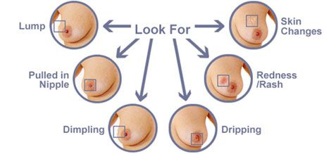 Recognize the early symptoms of breast cancer #breastcavery
