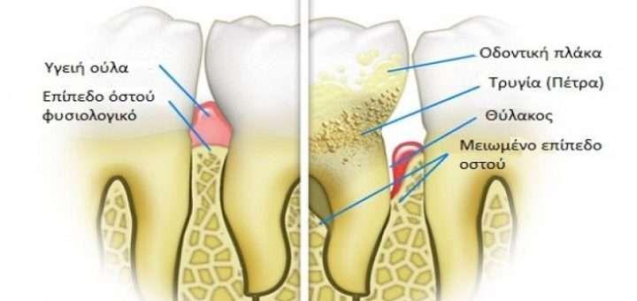 symptomata-kai-fysiki-antimetopisi-oulitidas-kai-periodontitidas
