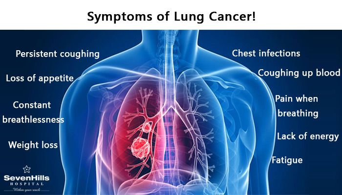 Essay/Term paper: Lung cancer