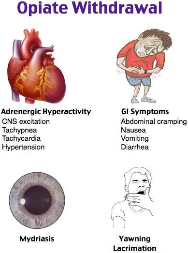 Flu-like illness Abdominal cramps Diarrhea Mydriasis Piloerection Yawning Rx: clonidine, antiemetics
