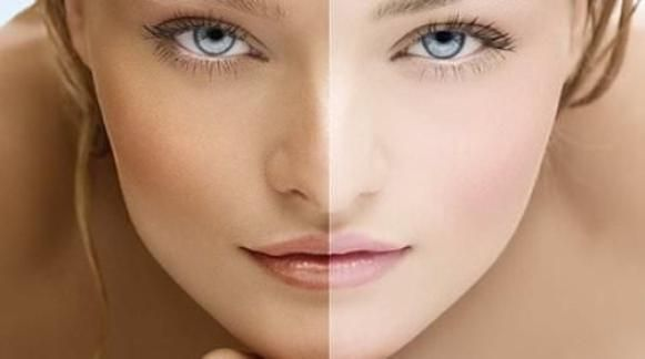 How-to-Lighten-Skin-Naturally