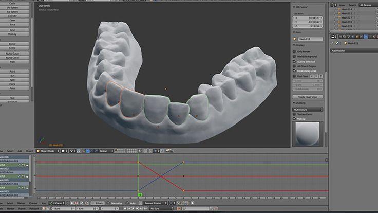 Impression 3D : un étudiant imagine un appareil dentaire à 60 dollars