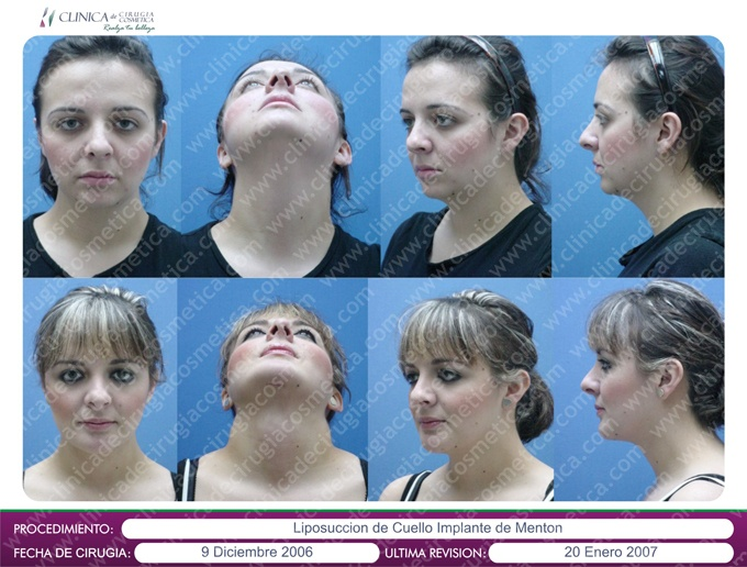 Procedimiento: Liposuccion de cuello e implante de menton
