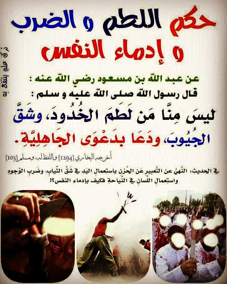 حكم اللطم والضرب وادناء النفس قناة يوسف شومان السلفية