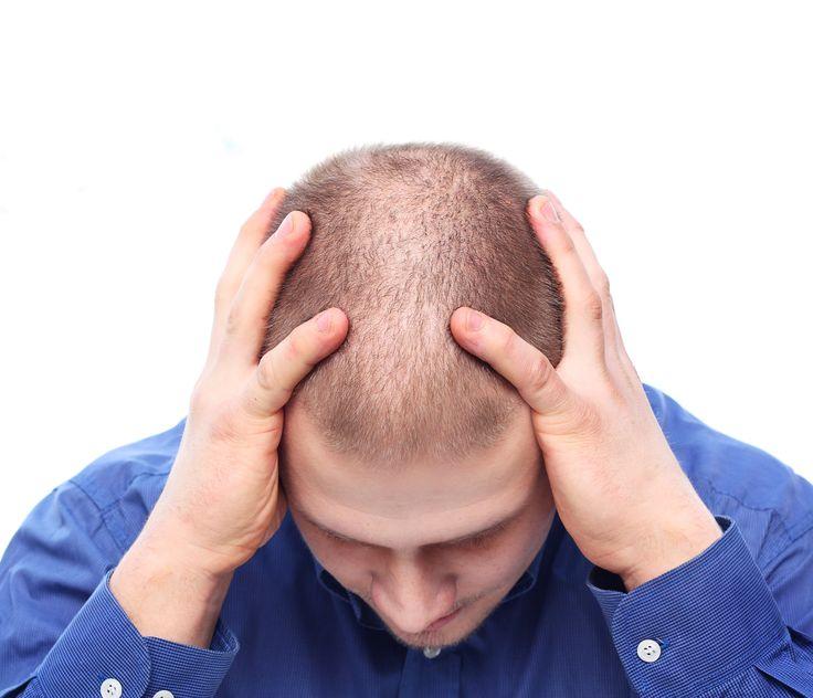 FAQ - Hair Loss Recovery Inc.