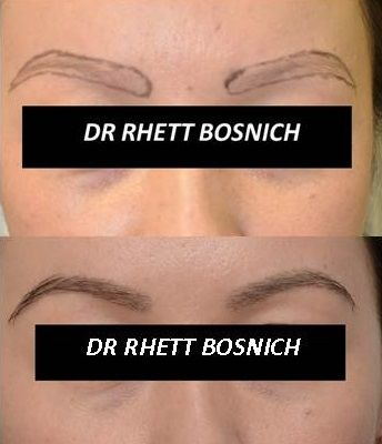 Latest photos of eyebrow transplant surgery by Dr Rhett Bosnich and team, Melbourne and Sydney. http://newinhairtransplant.com.au/hair-transplant/hair-transplant-types/eyebrow-transplants/ #eyebrows #hairtransplant #brows