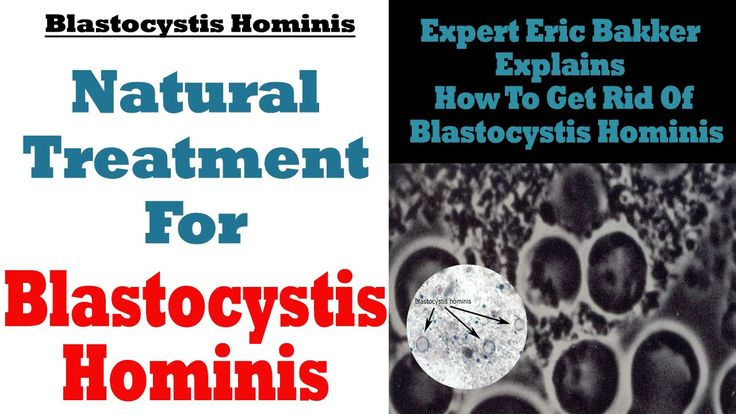 Blastocystis Hominis Treatment: Natural Treatment For Blastocystis Hominis