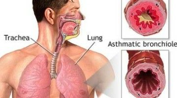 the causes symptoms and known treatments of pneumonia Most symptoms of a sore throat will resolve with  it is known as strep throat or a streptococcal infection the following is a list of symptoms, causes,.