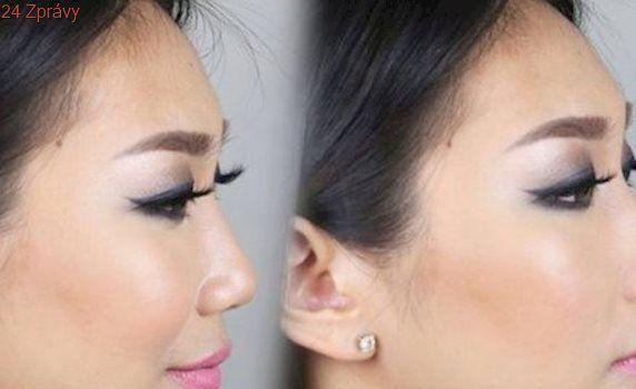 Šokující kosmetický hit: Upravte si nos bez plastické operace!
