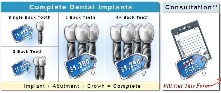 Dental Implant Costs