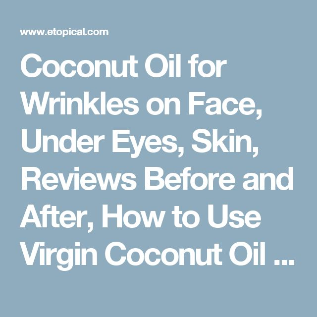 Coconut Oil for Wrinkles on Face, Under Eyes, Skin, Reviews Before and After, How to Use Virgin Coconut Oil to Get Rid of Wrinkles