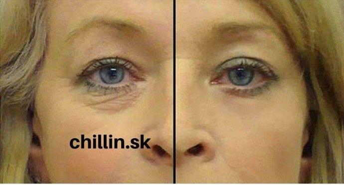 Zbavte sa vrások okolo očí vďaka dvom ingredienciám. Urobte si doma svoje super olejové supersérum   Chillin.sk