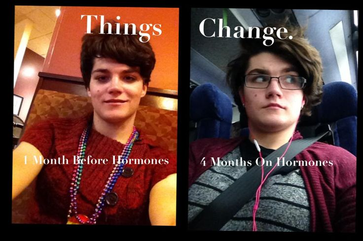 Mtf 4ish months on hormones, oh how far I've come