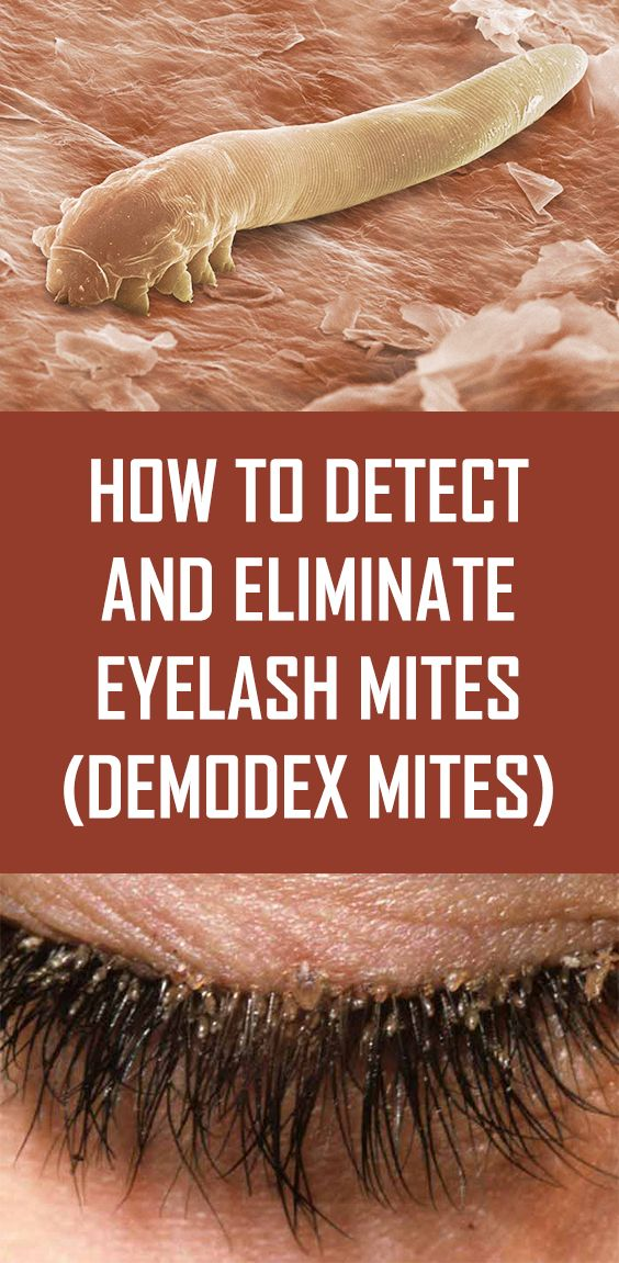 How To Detect And Eliminate Eyelash Mites Demodex Mites Health