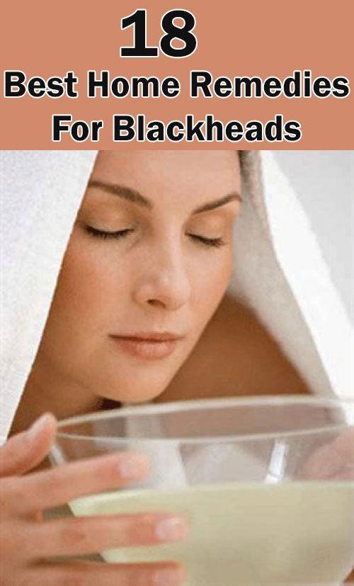 18 Home Remedies For Blackheads #SkinCareSecretsTi…