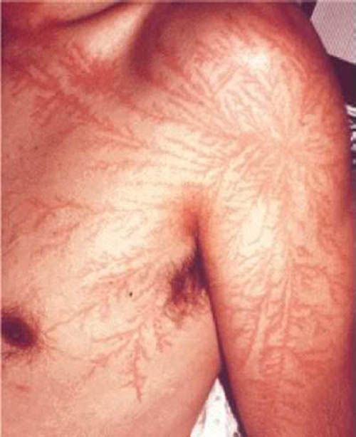 Lichtenberg Figures are the name of the fractal-like scars left by lightning strikes on the human body.