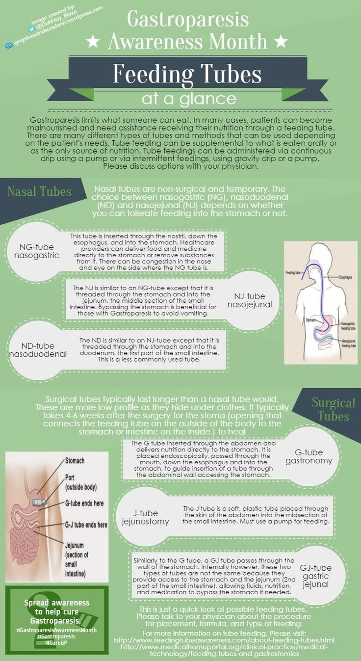 Gastroparesis ‪#‎GastroparesisAwarenessMonth‬ Day 8 is a glance at ‪#‎FeedingTubes‬. To be honest this post was hard to condense as each tube could use it's own post, not to mention the different formulas and methods of feeding. This is a very condensed look at types of tubes that can be used for getting ‪#‎nutrition‬, medication and hydration when oral methods are no longer enough.