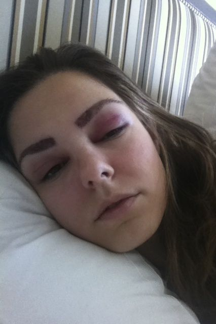 The True Story Of Eyebrow Transplants