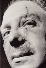 Jack Spot showing off the scars after being attacked by a rival group led by Frankie Fraser. This came about after Jack Spot & rival leader Billy Hill fell out.