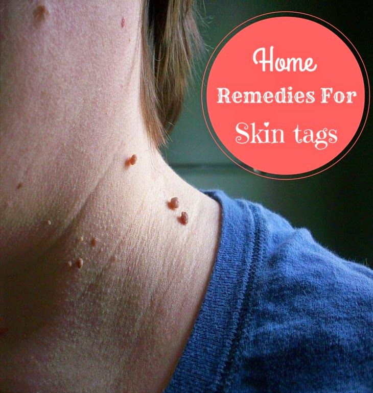 Home Remedies For Skin Tag Removal