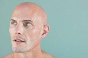 Reasons for hair loss in men