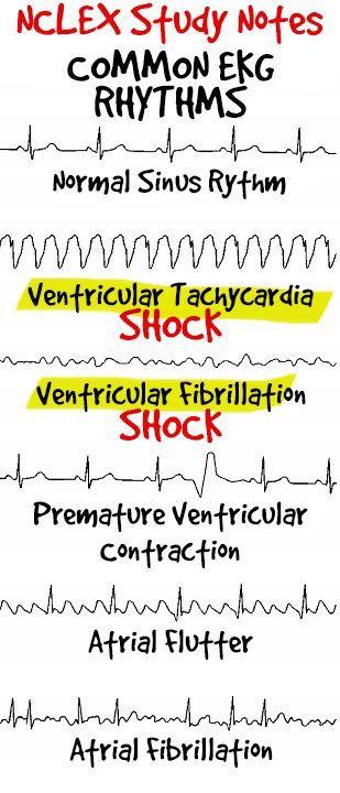 EKG rhythms