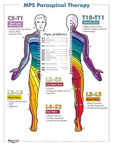Dermatome Poster Small Massage Therapy Neurolog 237 A