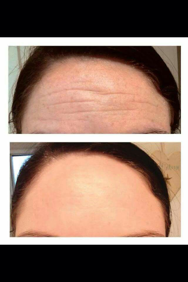 Say goodbye to forehead wrinkles and look younger and less stressed.   Eye Effects 3 + Skincerity.