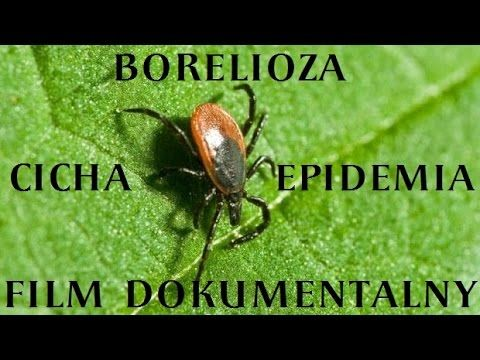Borelioza, cicha epidemia - Lyme Disease, a silent epidemic Scenariusz i reżyseria: Chantal Perrin Dokument, Francja, 2014, 52 min.